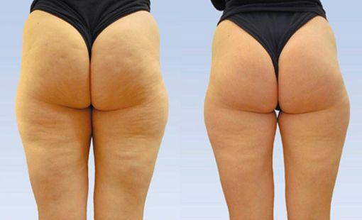 Эффект крема - до и после
