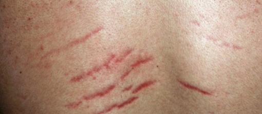 Красные стрии на спине