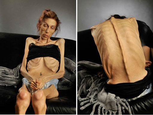 Анорексия 18 килограмм