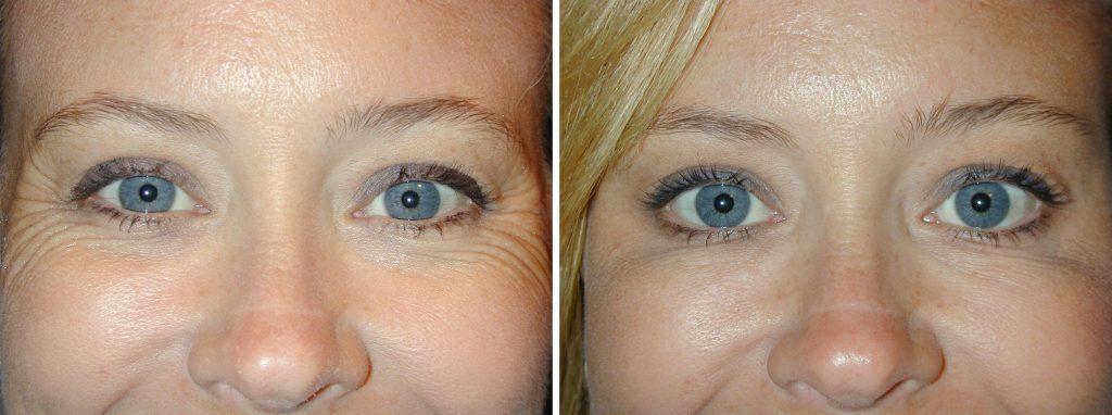 ботокс от морщин вокруг глаз фото до и после