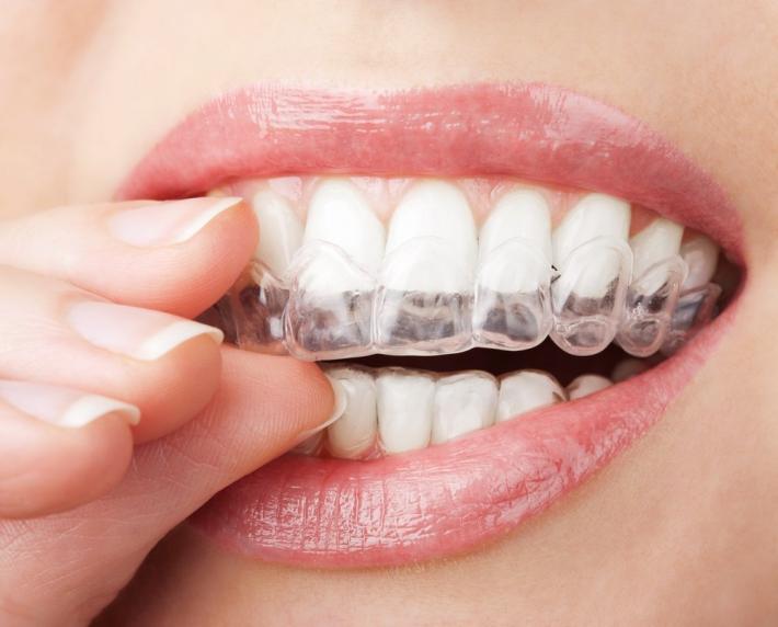 otbelivanie-zubov---klinicheskie-i-domashnie-metody