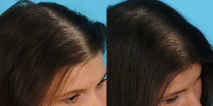 никотиновая кислота для волос2
