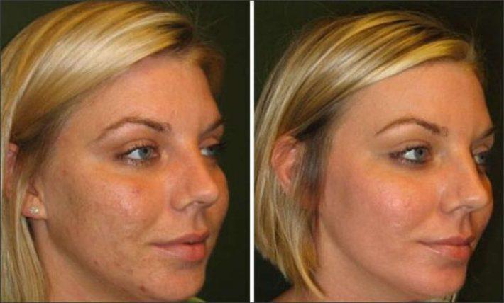 Аргановое масло для лица: как пользоваться, отзывы фото до и после