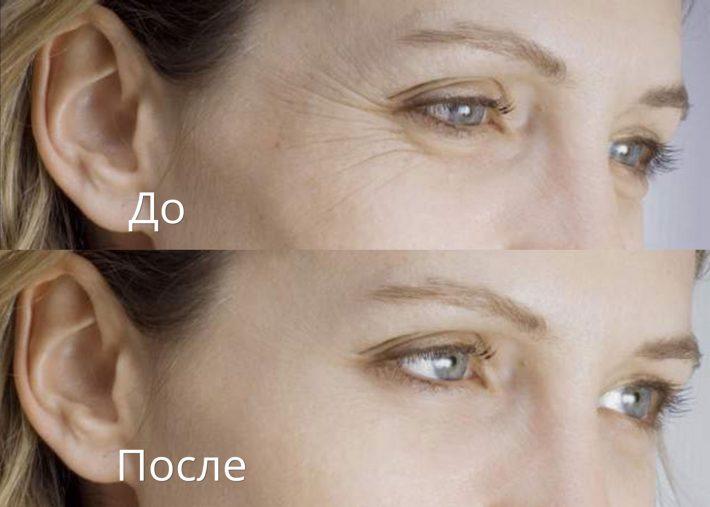 Персиковое масло для лица: рецепты масок, крем, противопоказания, отзывы с фото до и после