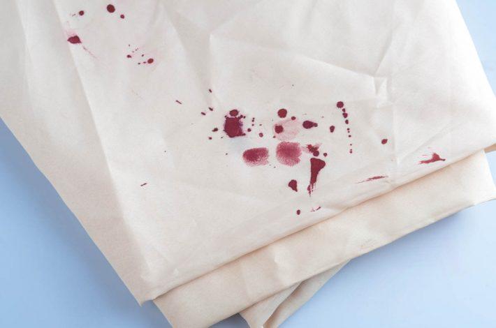чем отстирать кровь с белого